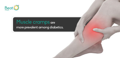 Illustration of How To Deal With Leg Cramps In Diabetics?