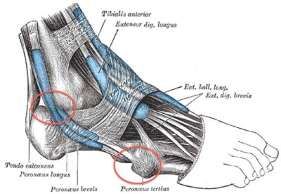 Illustration of The Ankle Hurts When Running?