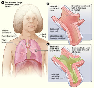 Illustration of Cough Accompanied By Nausea In Bronchitis Sufferers?