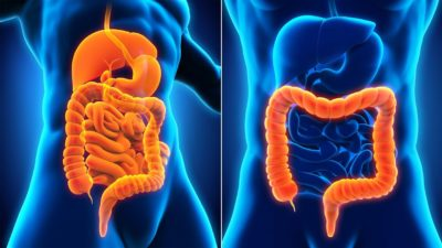 Illustration of Differences In The Characteristics Of Stomach Disorders And Intestinal Diseases?