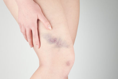 Illustration of Causes Of Blue Spots Appearing After Menstruation?