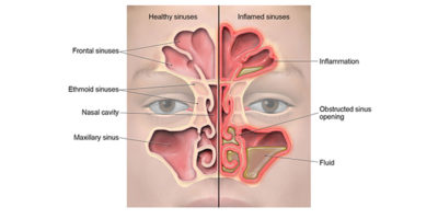 Illustration of Nasal Congestion And Ear Pain When Forced To Clean The Nose?
