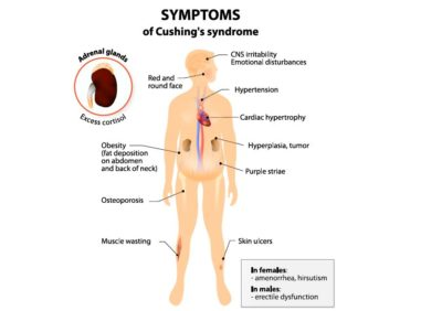 Illustration of Causes Of The Hormone Cortisol Is Abnormal And Lack Of Potassium?