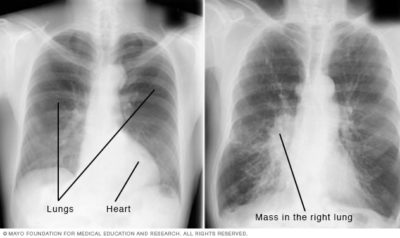 Illustration of Lung X-ray Examination Results; The Left Lung Hurts And The Right Lung Is Not Visible?