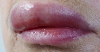 Illustration of Swelling On The Upper Lip And Painful When Pressed?