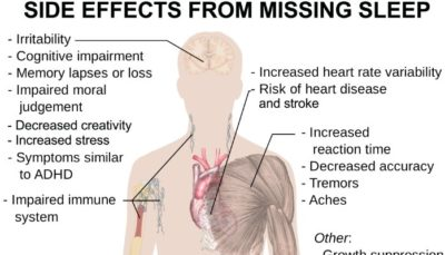 Illustration of Side Effects Of Sleeping Too Late For Health?