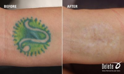 Illustration of The Best Way To Get Rid Of A Green Tattoo?