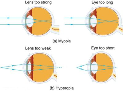 Illustration of Myopic Right Eye Cannot See Near Or Far?