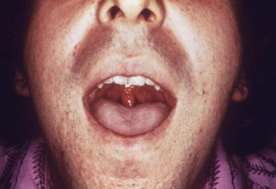 Illustration of Transmission Of Gonorrhea Through Bacterial Infection Of The Throat?