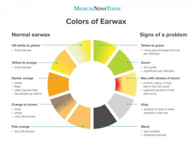 Illustration of Earwax Is Black And Yellowish In Color?