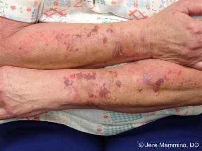 Illustration of Blackish Patches On The Skin Of The Arms, Blisters And Redness During Fever?