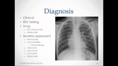 Illustration of Treatment Of Bronchitis Based On Chest X-ray Results?