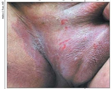 Illustration of Groin Fungal Infection Treatment For 6 Months?