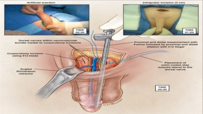 Illustration of The Period Of Time For The Operation Of The Penis And Bladder That Is Swollen Due To The Injection Of Aring Aring Oil?