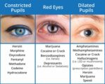 Overcoming Red Eyes After Being Given Eye Ointment?