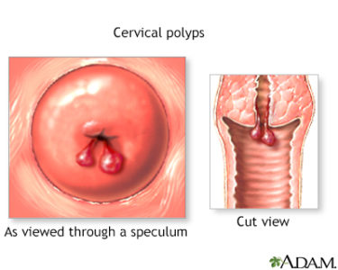 Illustration of Lower Abdominal Pain After Cervical Polyp Surgery?