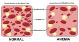 Overcoming Anemia And Low Blood Pressure In Pregnant Women?