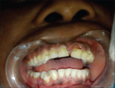 Illustration of Pain In The Front Teeth With A History Of Collisions?