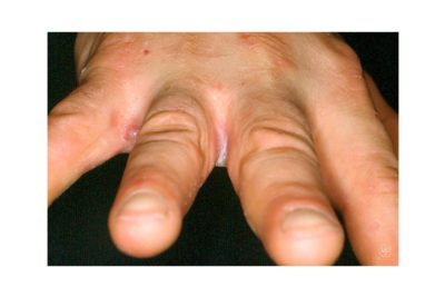 Illustration of White Watery Spots Accompanied By Itching Between The Fingers?