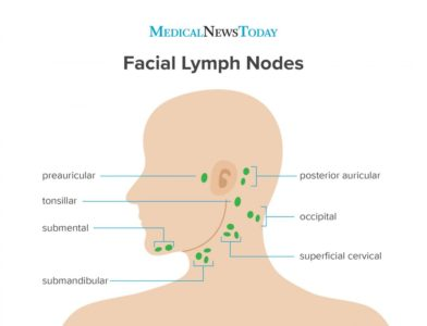 Illustration of Danger From Injury To The Lymph Nodes Around The Ear?