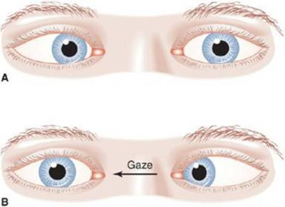 Illustration of The Right Eye Twitches And The Gaze Is Shaded?