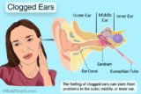 Clogged Ears After Showering And A Lot Of Discharge?