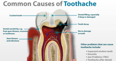 Illustration of Causes Of Toothache Pain After Filling?