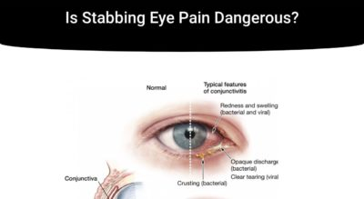 Illustration of The Right Eye Hurts Like A Needle And Feels Sore And Watery Continuously?