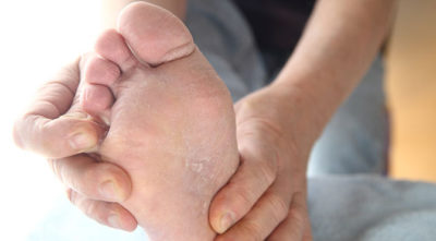 Illustration of Itching On The Skin Of The Feet Like There Are Small Bumps After Using The Concocted Lotion?