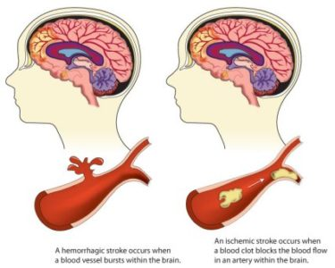 Illustration of What Type Of Stroke Is A Stroke That Is Only Paralyzed On The Left Side?