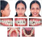 The Use Of Braces To Treat A Retracted Jaw?