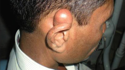 Illustration of Lumps Above The Ear Lobe That Are Getting Bigger?