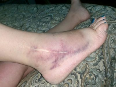 Illustration of Swollen Legs After Spraining A Fall From The Stairs?