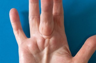 Illustration of The Fingers From Ganglion Surgery Are Still Difficult To Straighten?