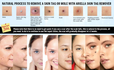 Illustration of Enlarged Moles After Using Beauty Creams?