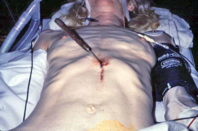 Illustration of Stab Wound?