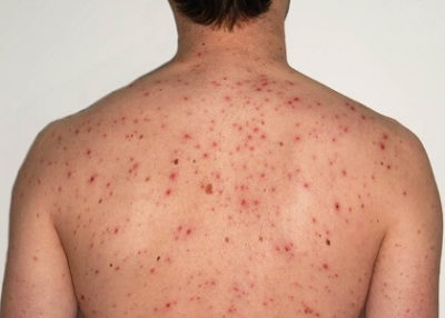 Illustration of Causes Of Spots Appear On The Back, Chest, And Armpits?