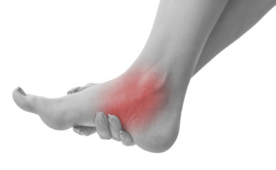 Illustration of Pain In The Instep And A Feeling Of Weakness To Lift The Heel?