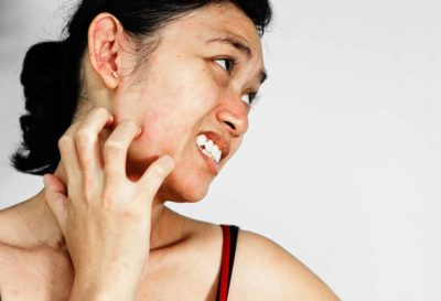 Illustration of How To Deal With Itching On The Face Every Time You Sweat On The Face?