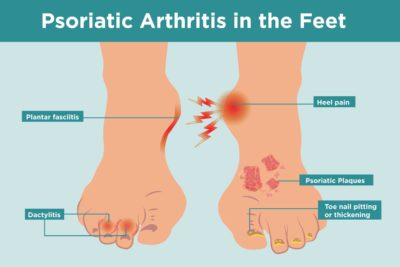 Illustration of Pain In The Joints Of The Feet And Itching After Eating Peanut Shells?