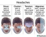 How To Deal With Fever Accompanied By Headaches That Don't Go Away?