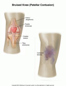Illustration of How To Deal With Bruises And Pain In The Knee After An Accident?