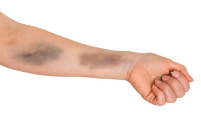 Illustration of Causes Bruises On The Body And Pain When Pressed?