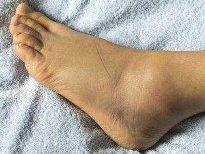 Illustration of How To Deal With Swelling In The Ankle Area Due To Injury?