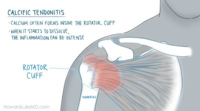 Illustration of Shoulder Pain From A Fall 2 Years Ago?