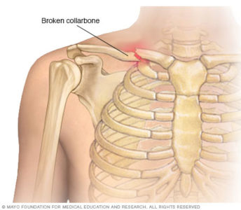Illustration of How To Deal With A Broken Collarbone That Hurts?