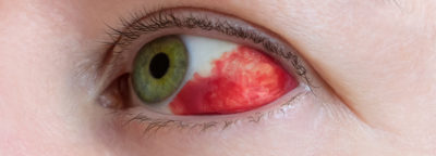 Illustration of How To Deal With Bleeding In The Eye?