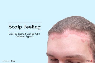 Illustration of How To Deal With The Scalp Is Like Peeling It That Doesn't Go Away?