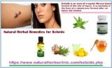 Use Of Herbal Medicines To Treat Keloids?