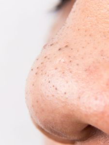Illustration of The Cause Of The Black Bumps On The Nose That Doesn't Go Flat?